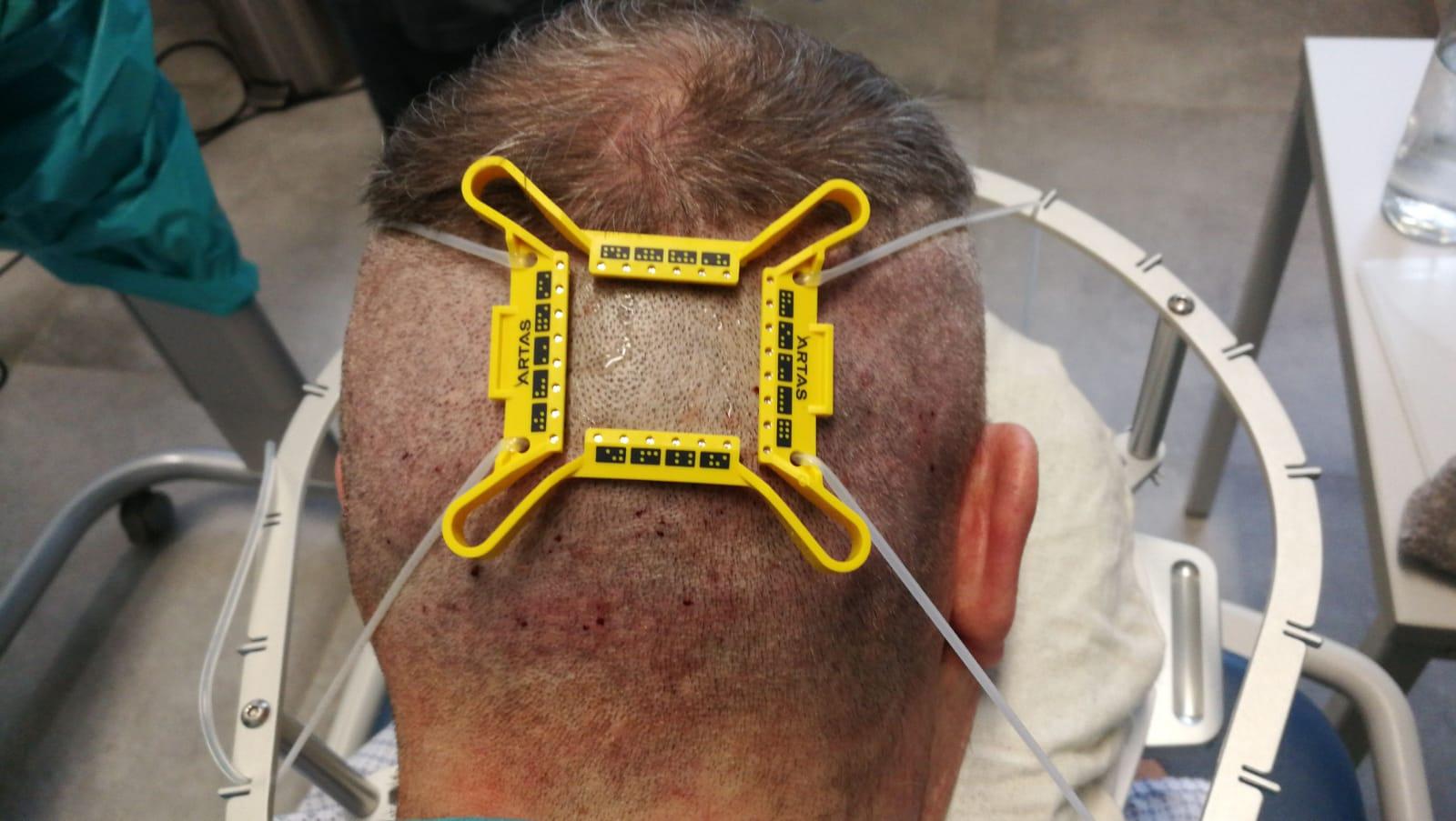 Haartransplantation mit dem ARTAS-Roboter