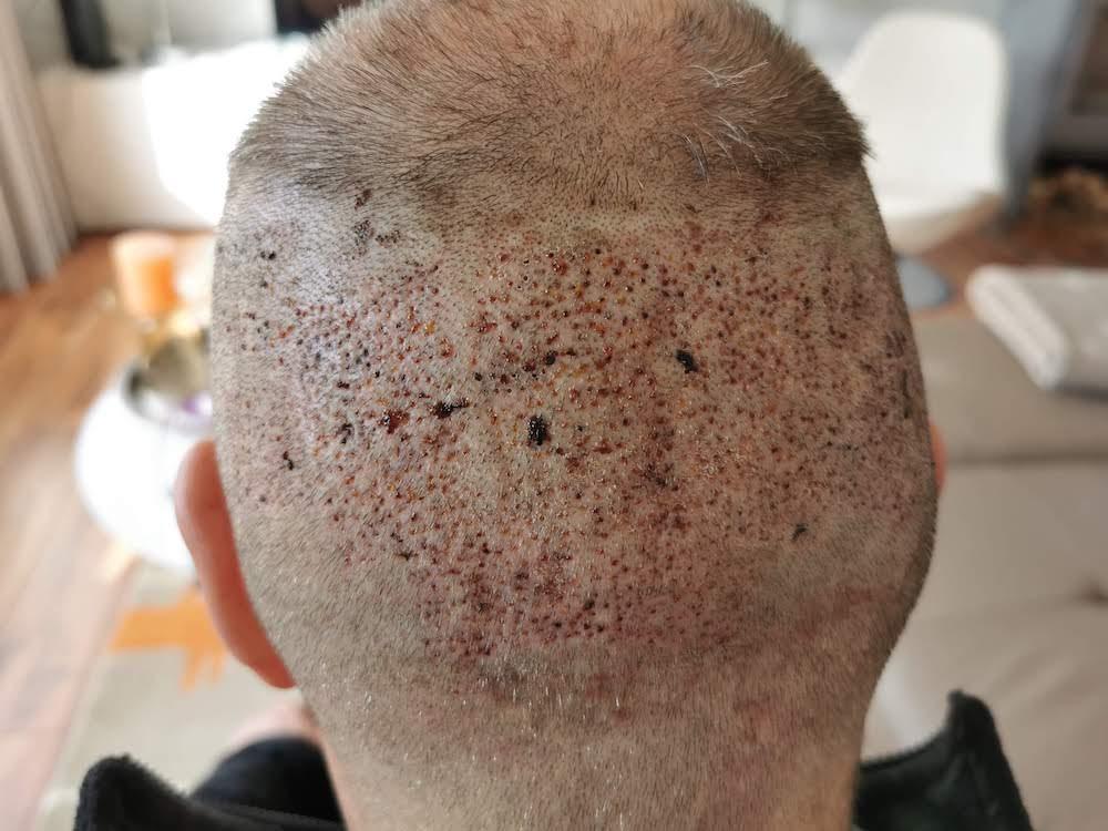 Mein Kopf einen Tag nach der Haarentnahme