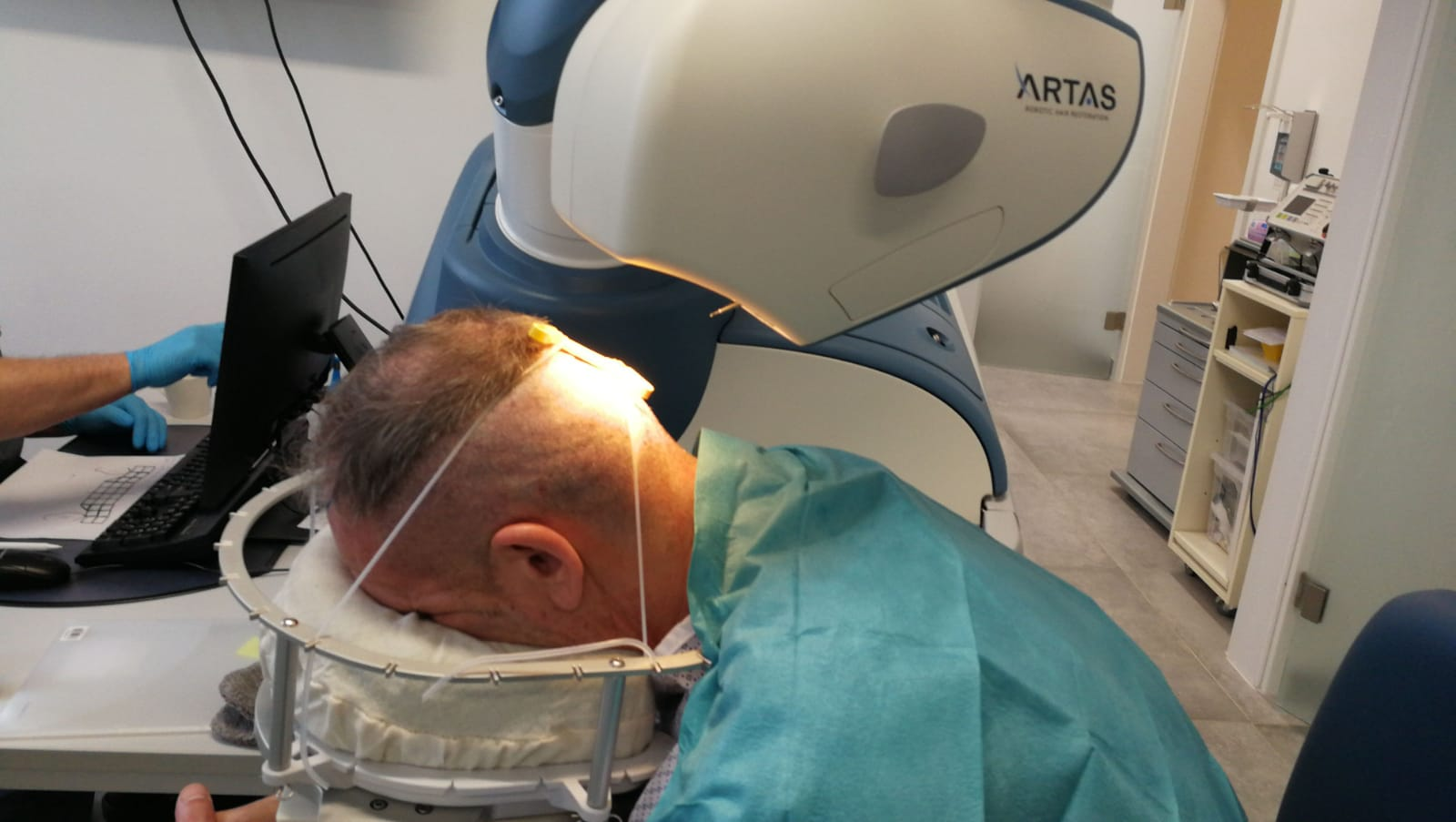 ARTAS-Haar-Roboter bei der Haarentnahme