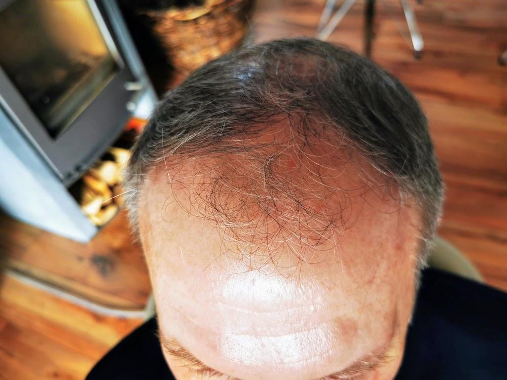 Haartransplantation vorher